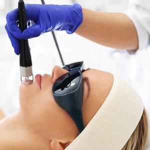 Laser Medical Grade at Dee Why Skin face