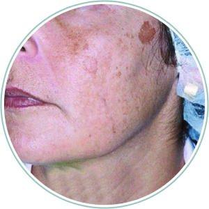 Pigmentation before treatment 2