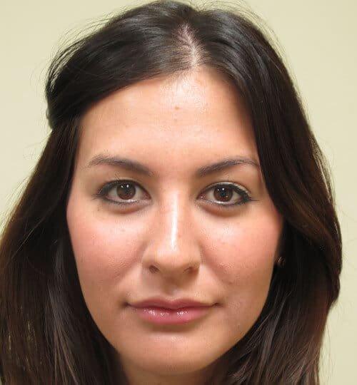 Hyaluronic Acid lip filler after Restylane Juvederm