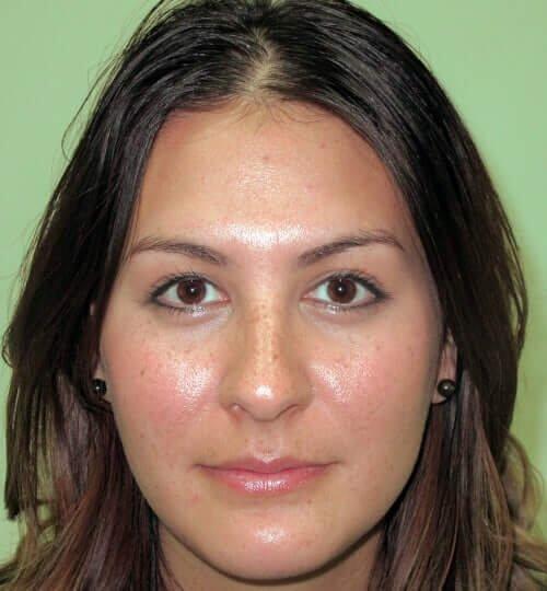 Hyaluronic Acid lip filler before Restylane Juvederm