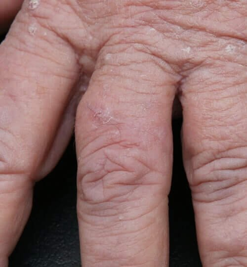 Squamous Cell Carcinoma finger after