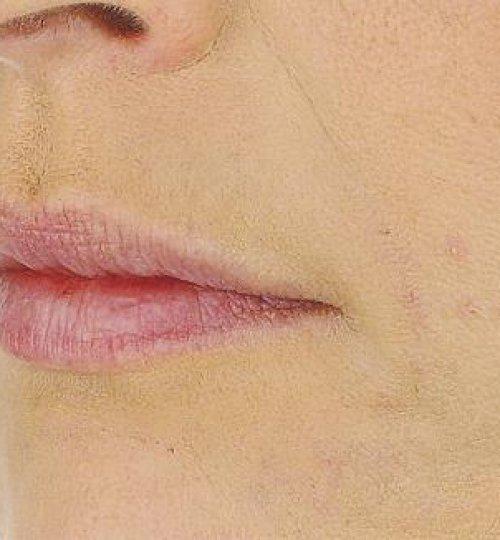 nasolabial fold filler after